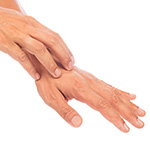 Hand Dermatitis Treatment